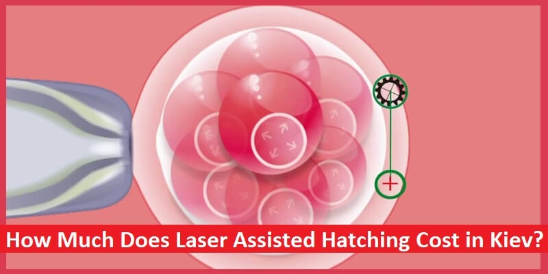 Laser Assisted Hatching Cost in Kiev