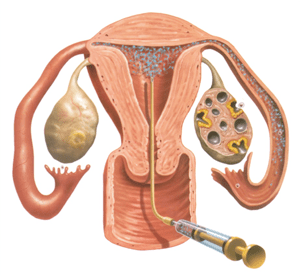 cost of ovulation induction in Ukraine